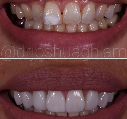 Los Angeles before & after dental photos