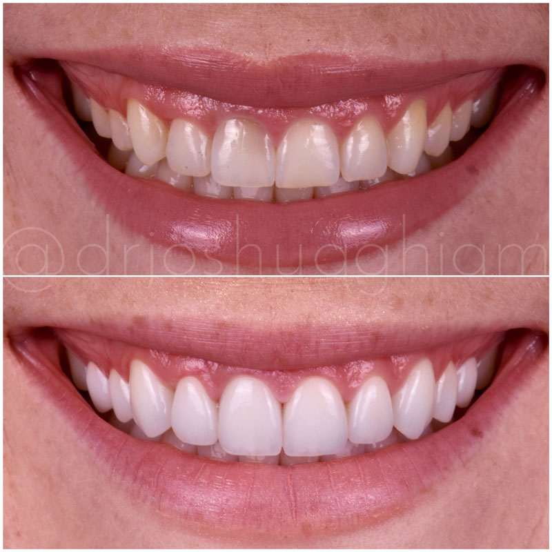 Before & After Smile Gallery, Los Angeles Cosmetic Dentist, Photo 0