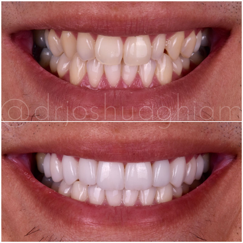 Before & After Smile Gallery, Los Angeles Cosmetic Dentist, Photo 2