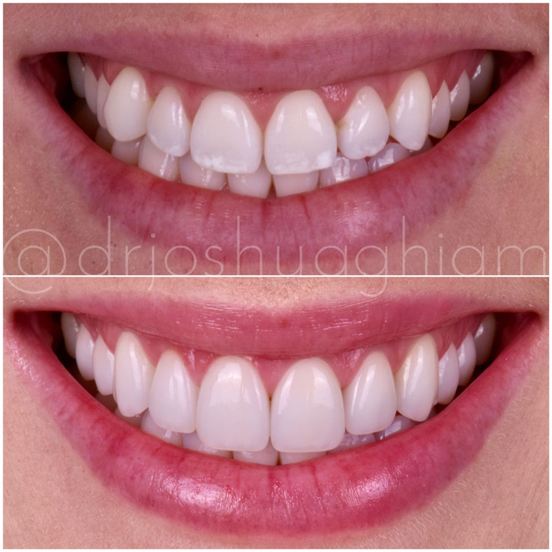 Before & After Smile Gallery, Los Angeles Cosmetic Dentist, Photo 5