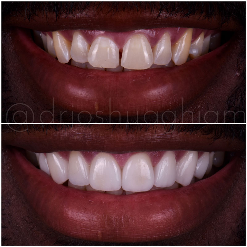 Before & After Smile Gallery, Los Angeles Cosmetic Dentist, Photo 10