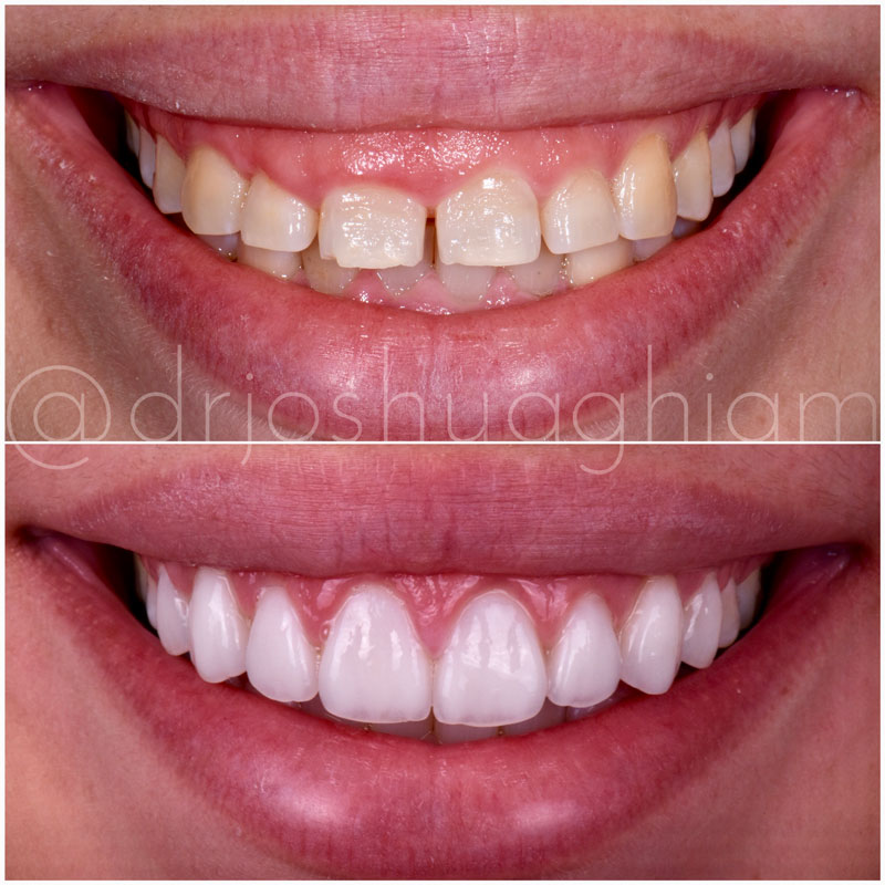 Before & After Smile Gallery, Los Angeles Cosmetic Dentist, Photo 16