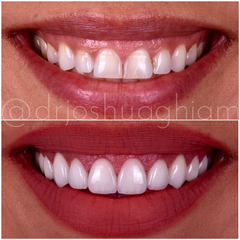 Before & After Smile Gallery, Los Angeles Cosmetic Dentist, Photo 25