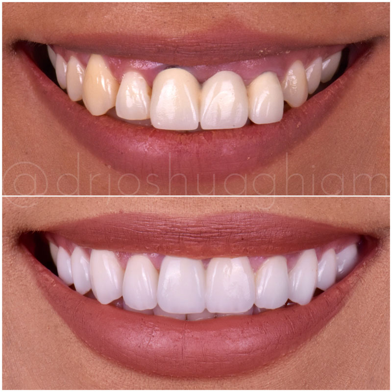 Before & After Smile Gallery, Los Angeles Cosmetic Dentist, Photo 30