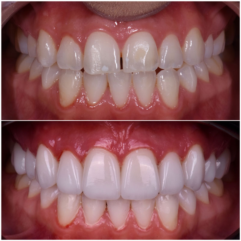 Before & After Smile Gallery, Los Angeles Cosmetic Dentist, Photo 32