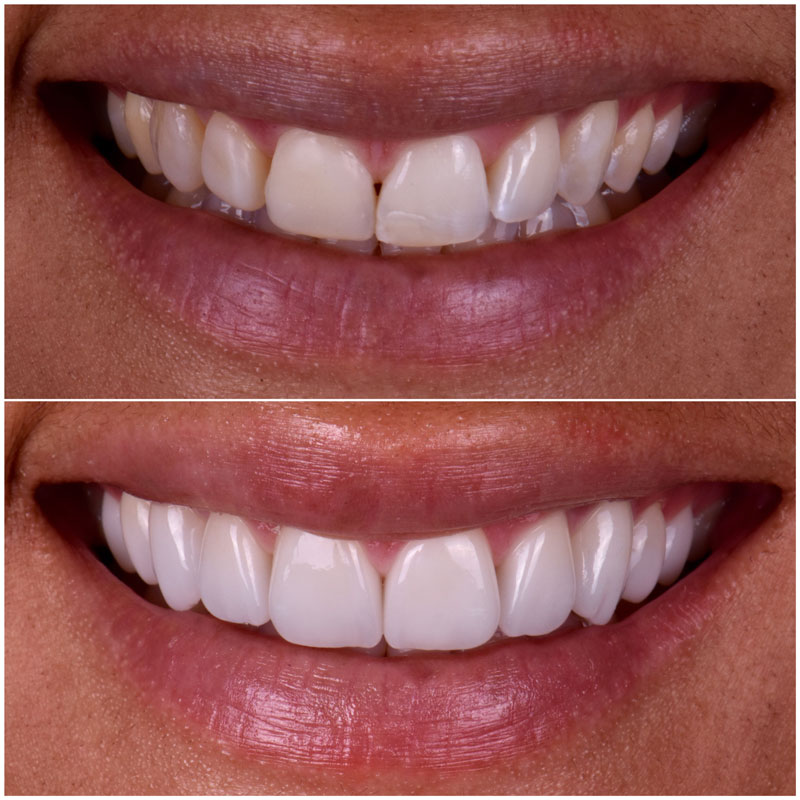 Before & After Smile Gallery, Los Angeles Cosmetic Dentist, Photo 33