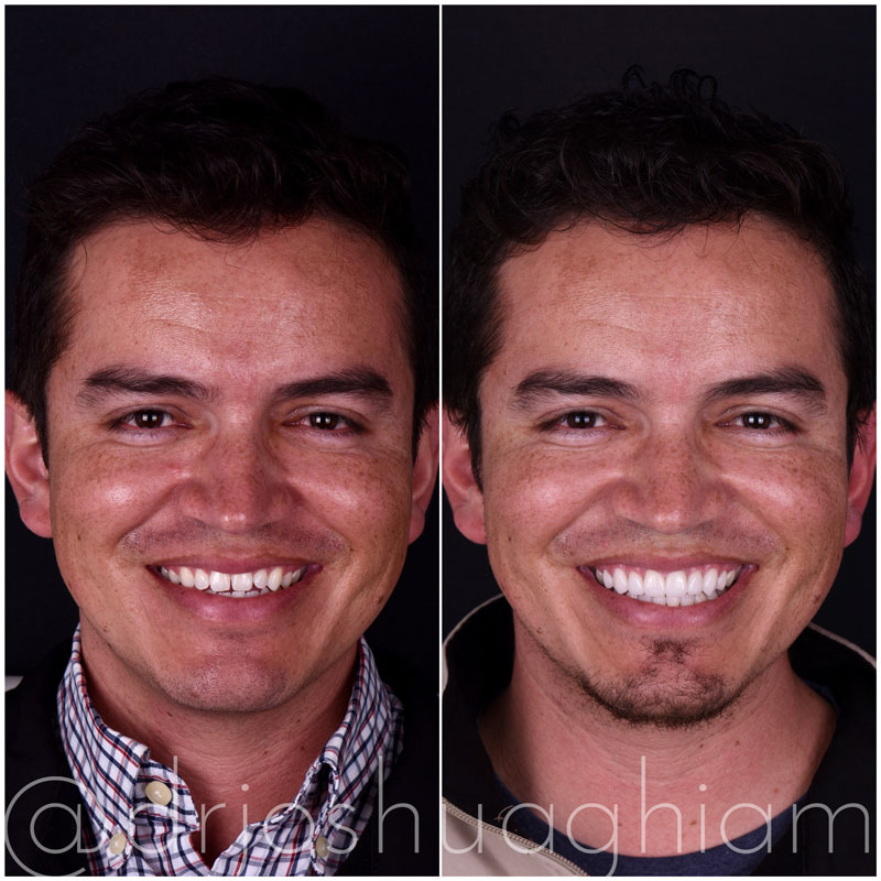 Before & After Smile Gallery, Los Angeles Cosmetic Dentist, Photo 12