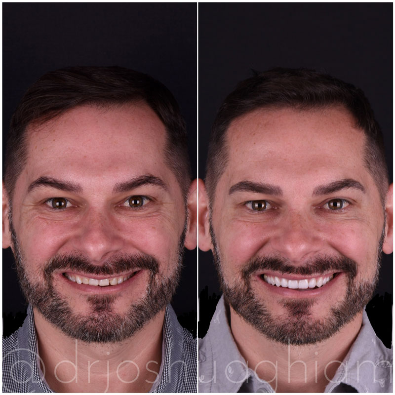 Before & After Smile Gallery, Los Angeles Cosmetic Dentist, Photo 15
