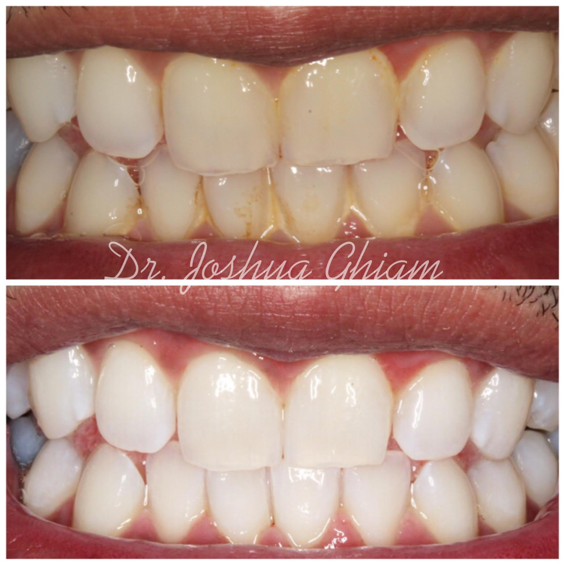 Before & After Smile Gallery, Los Angeles Cosmetic Dentist, Photo 24