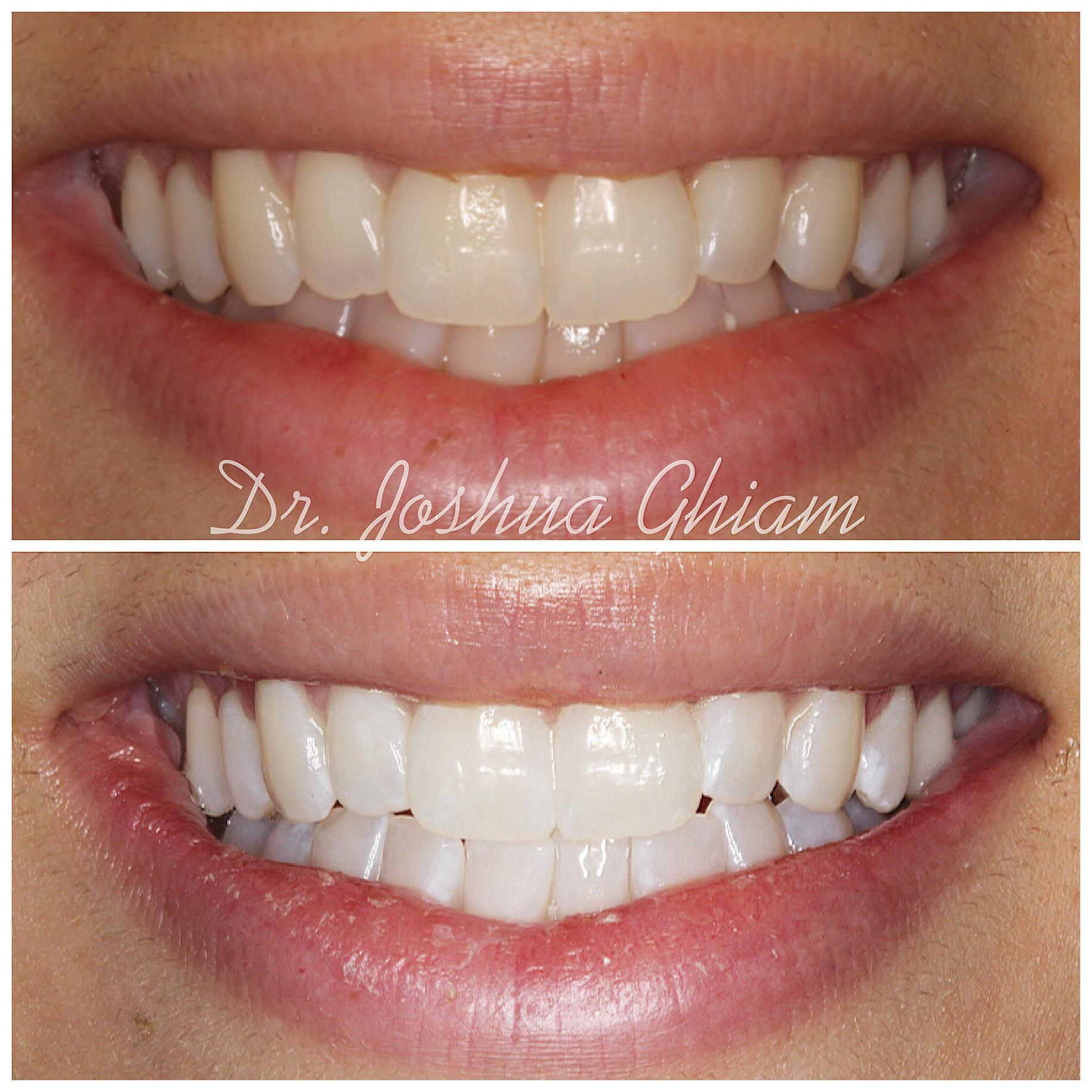 Before & After Smile Gallery, Los Angeles Cosmetic Dentist, Photo 26