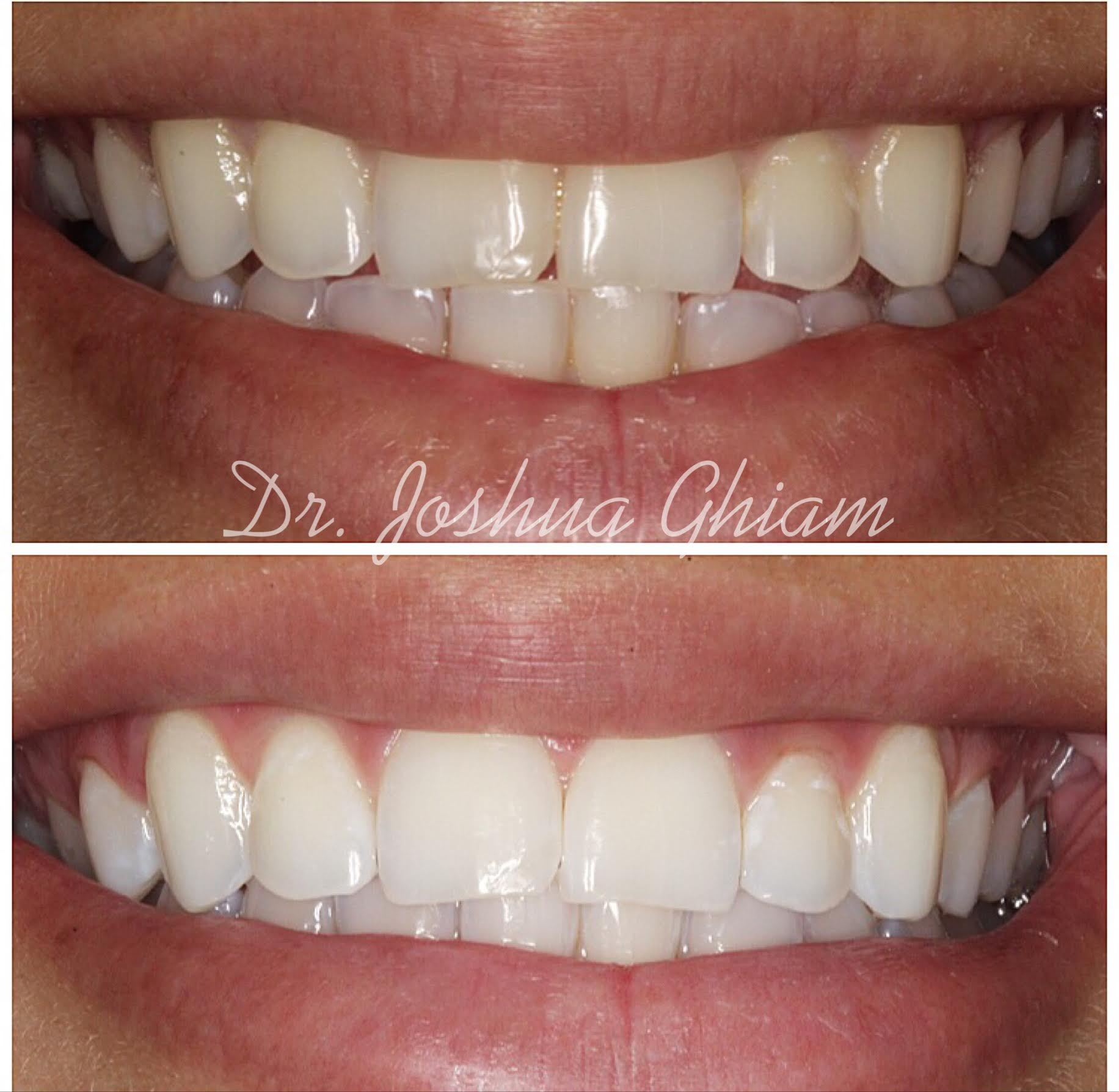 Before & After Smile Gallery, Los Angeles Cosmetic Dentist, Photo 27