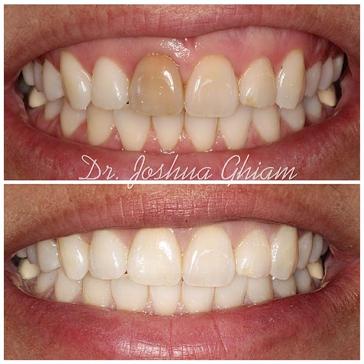 Before & After Smile Gallery, Los Angeles Cosmetic Dentist, Photo 40