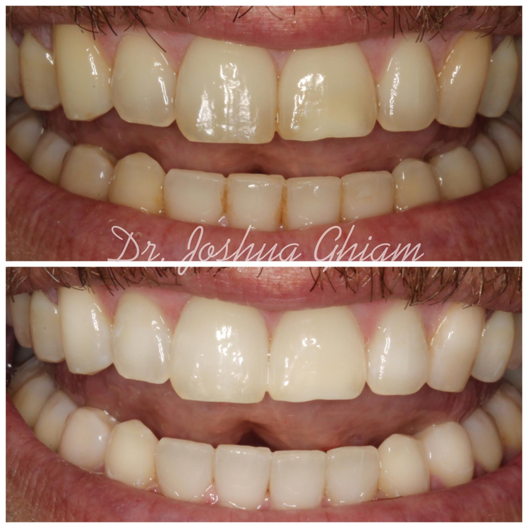 Before & After Smile Gallery, Los Angeles Cosmetic Dentist, Photo 41
