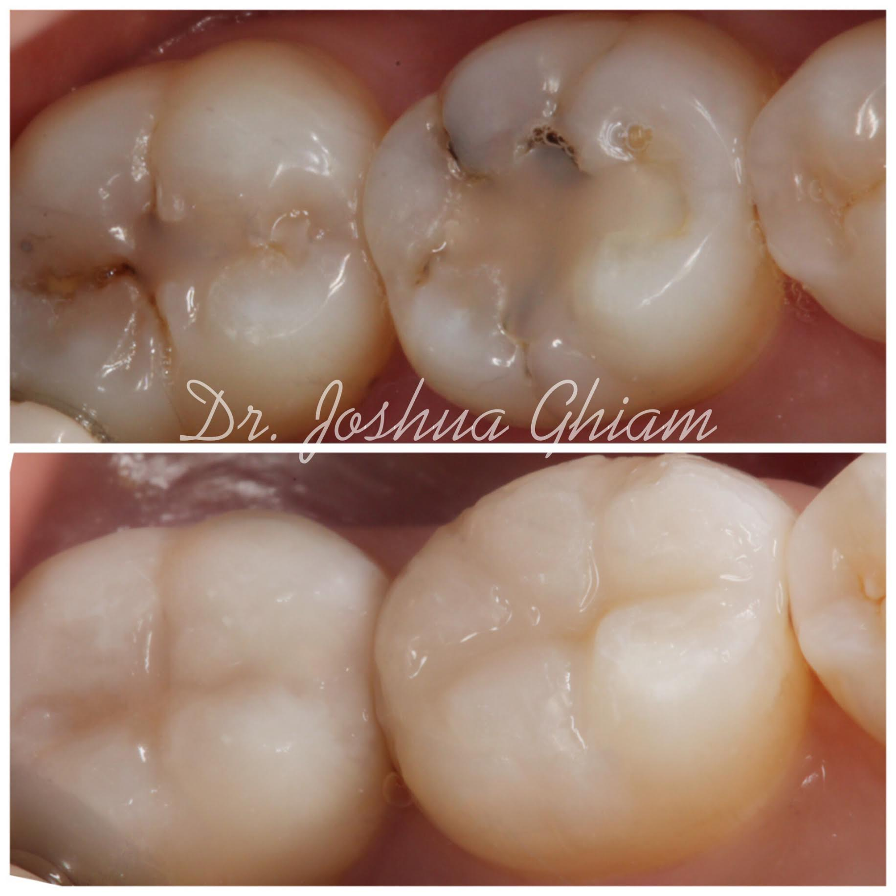 Before & After Smile Gallery, Los Angeles Cosmetic Dentist, Photo 42