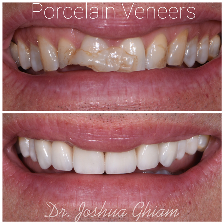 cost of dental veneers Los Angeles
