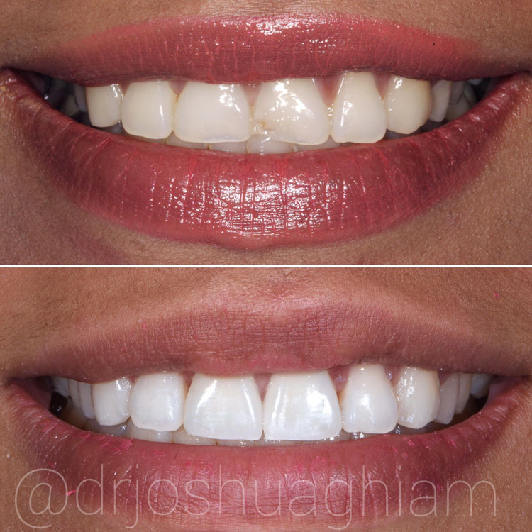 Before & After Smile Gallery, Los Angeles Cosmetic Dentist, Photo 35