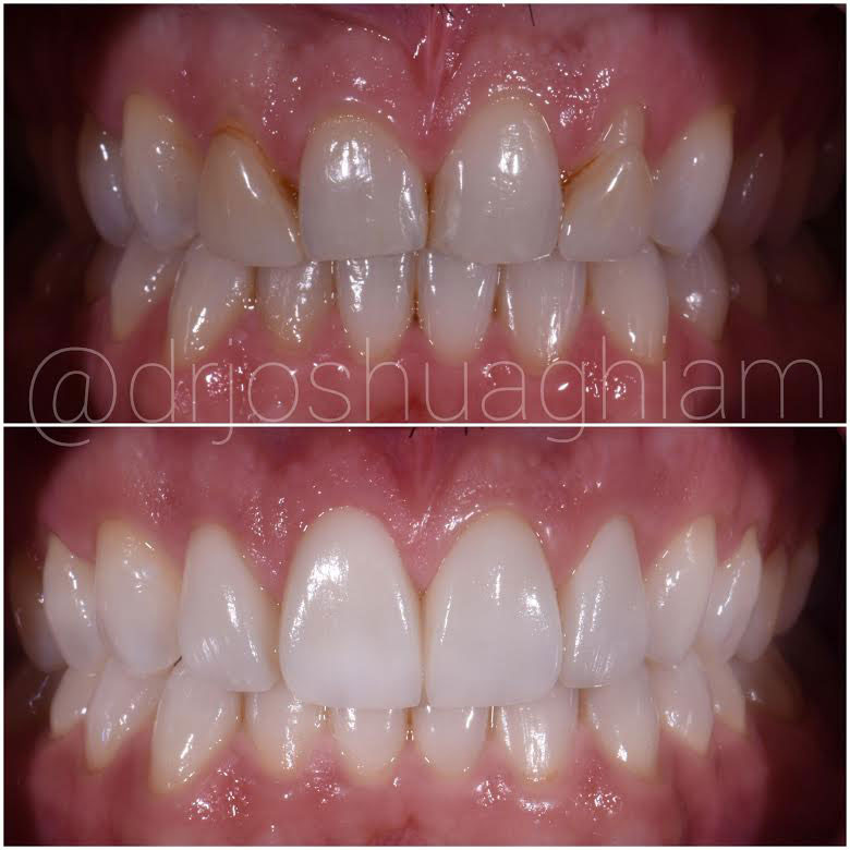 Before & After Smile Gallery, Los Angeles Cosmetic Dentist, Photo 22