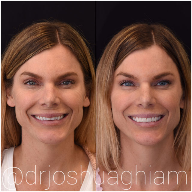 Before & After Porcelain Veneers, L.A. Smiles Dental Spa