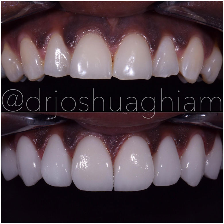 Before & After Smile Gallery, Los Angeles Cosmetic Dentist, Photo 18