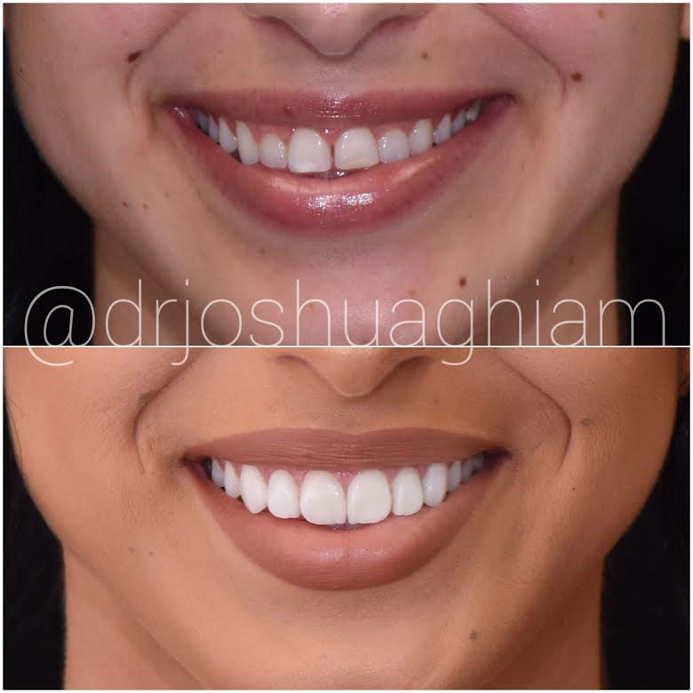 Before & After Smile Gallery, Los Angeles Cosmetic Dentist, Photo 9