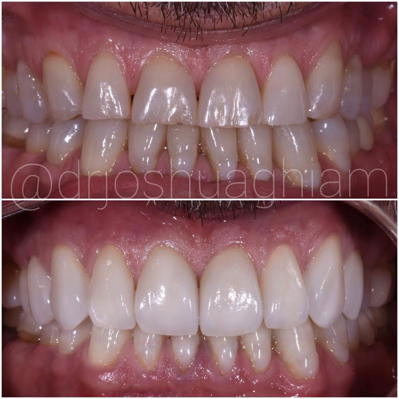 Porcelain Veneers by L.A. Smiles Dental Spa Before & After Image