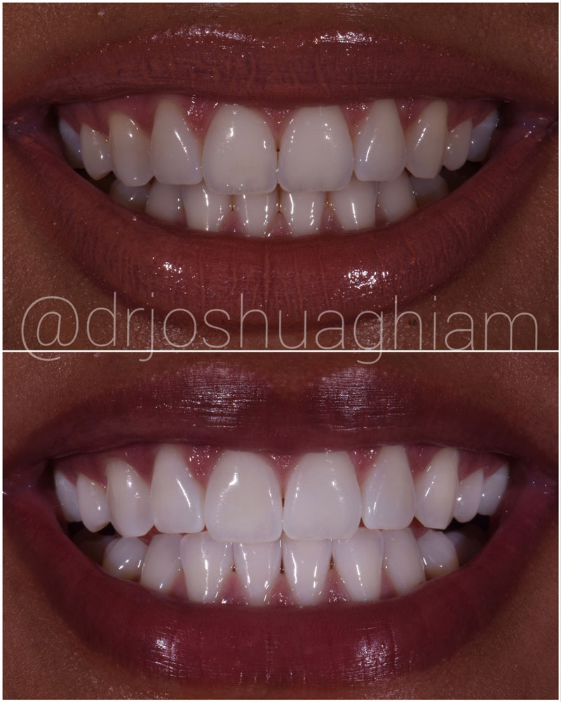 Before & After Smile Gallery, Los Angeles Cosmetic Dentist, Photo 14