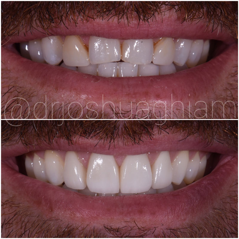 Before & After Smile Gallery, Los Angeles Cosmetic Dentist, Photo 48