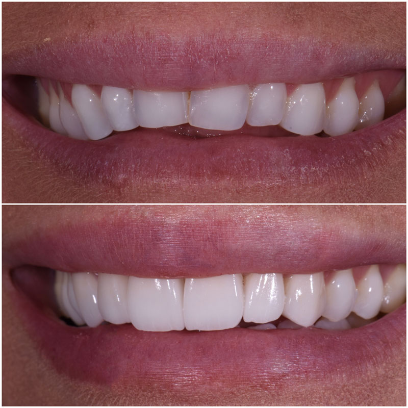 Before & After Smile Gallery, Los Angeles Cosmetic Dentist, Photo 37