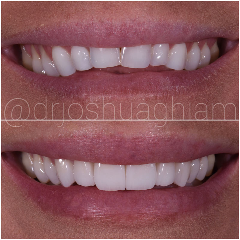 Before & After Smile Gallery, Los Angeles Cosmetic Dentist, Photo 50