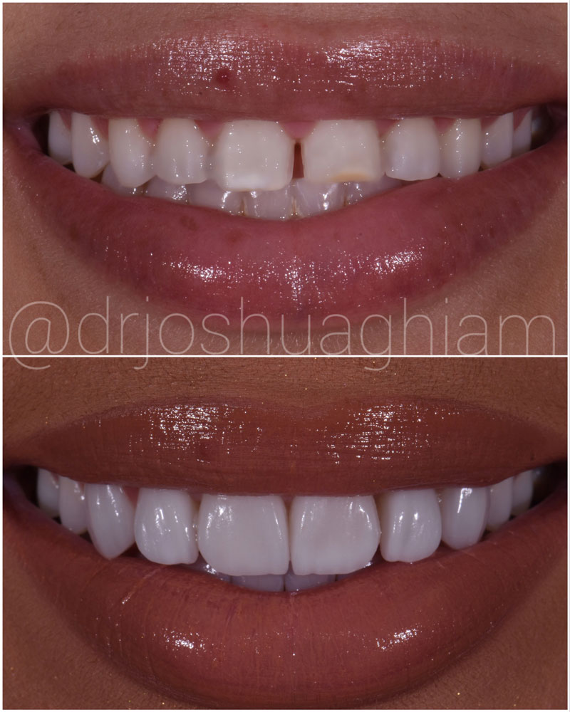 Before & After Smile Gallery, Los Angeles Cosmetic Dentist, Photo 6