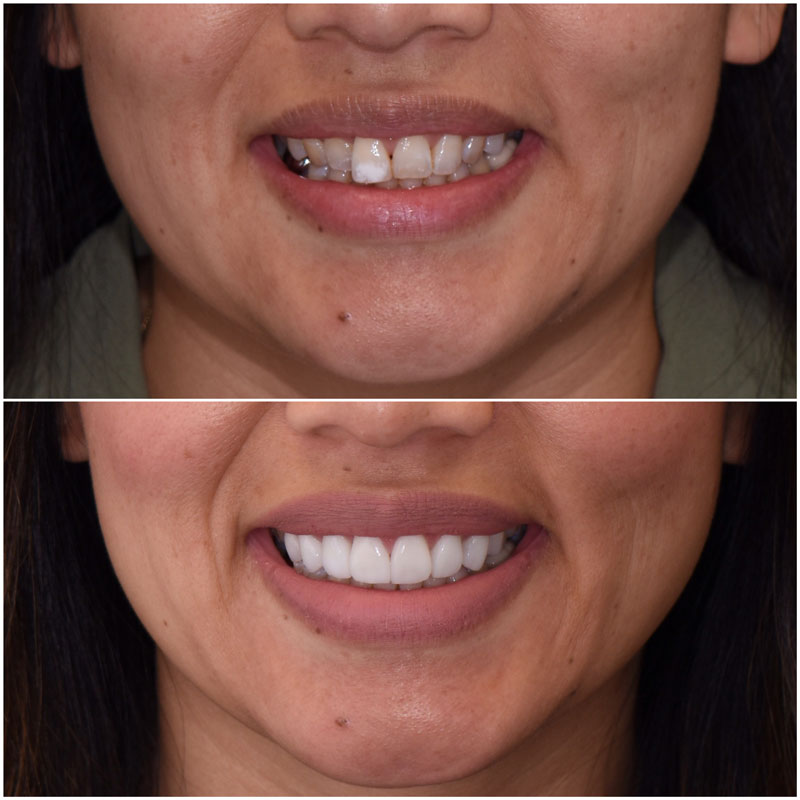 Before & After Smile Gallery, Los Angeles Cosmetic Dentist, Photo 11