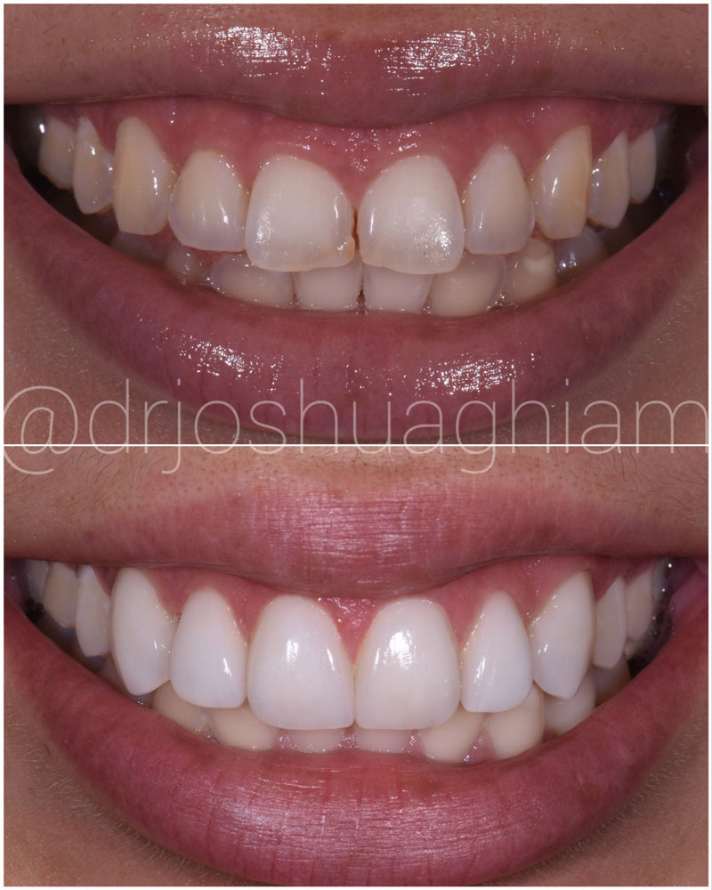 Before & After Smile Gallery, Los Angeles Cosmetic Dentist, Photo 7