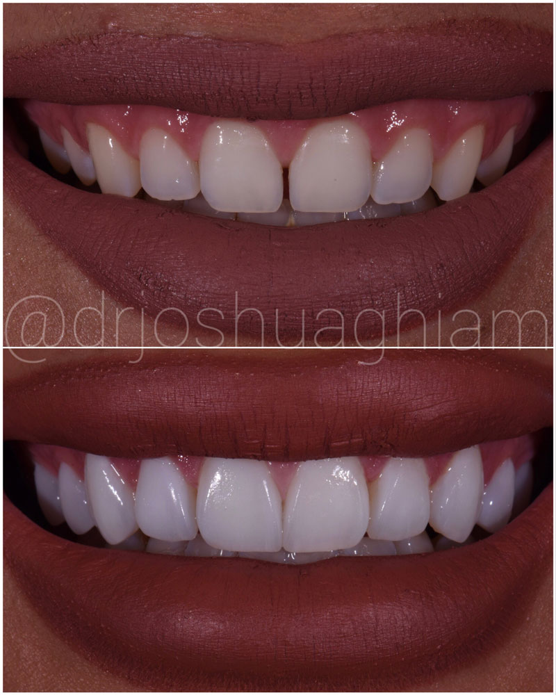 Before & After Smile Gallery, Los Angeles Cosmetic Dentist, Photo 8