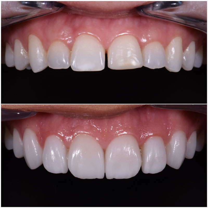 Before & After Smile Gallery, Los Angeles Cosmetic Dentist, Photo 29
