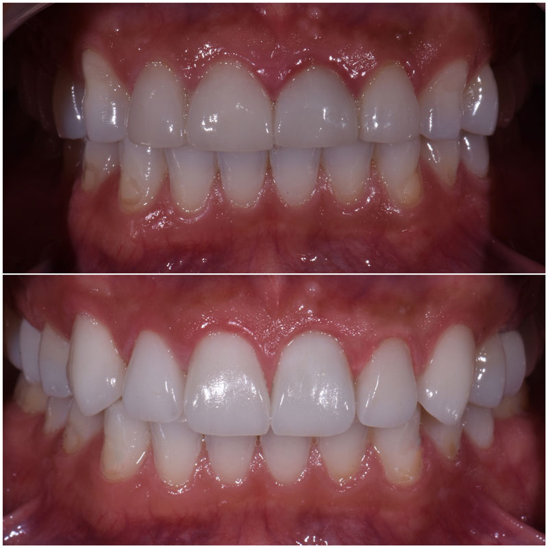 Before & After Smile Gallery, Los Angeles Cosmetic Dentist, Photo 23