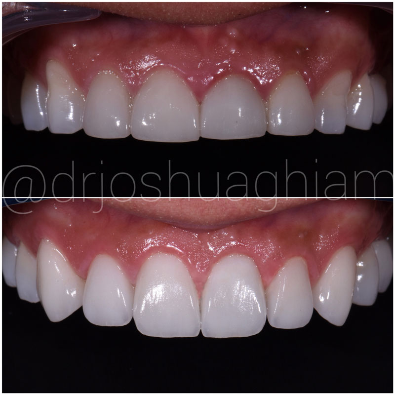 Before & After Smile Gallery, Los Angeles Cosmetic Dentist, Photo 20