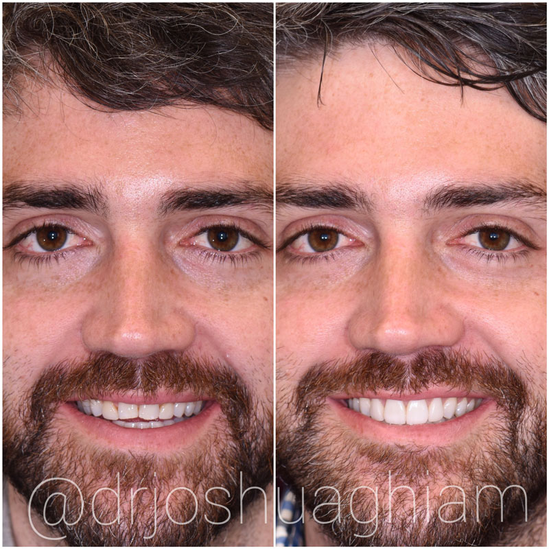 Before & After Porcelain Veneers, Los Angeles
