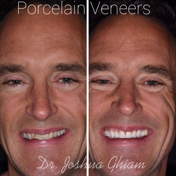 Porcelain Veneers Specialist in Los Angeles, Before & After Photo