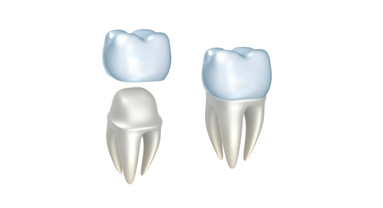 Los Angeles Dental Crowns, Same Day Crowns and Caps | L.A. Smiles Dental Spa