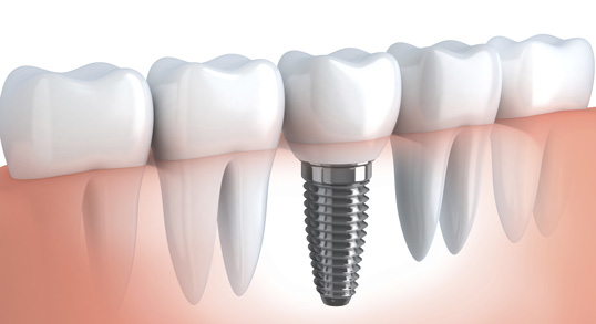 Los Angeles Dental Implant Dentist, Tooth Implants | L.A. Smiles Dental Spa 90048