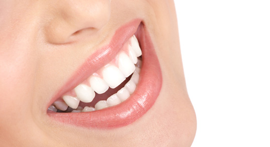 Porcelain Veneers Los Angeles | Dental Veneers | Cosmetic Dentist