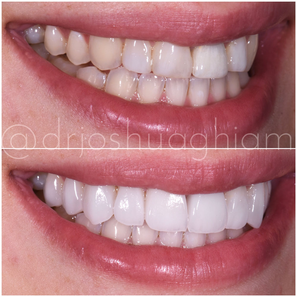Before & After Smile Gallery, Los Angeles Cosmetic Dentist, Photo 4