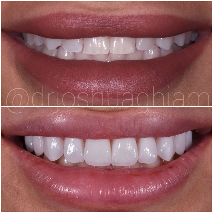Before & After Smile Gallery, Los Angeles Cosmetic Dentist, Photo 13
