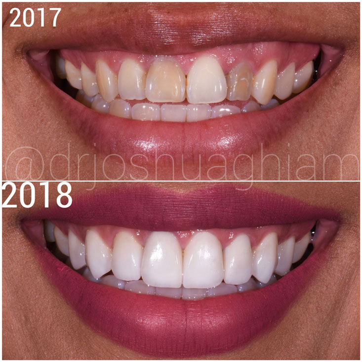 Before & After Smile Gallery, Los Angeles Cosmetic Dentist, Photo 17