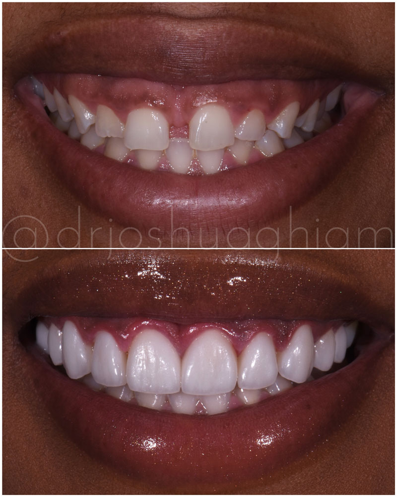 Before & After Smile Gallery, Los Angeles Cosmetic Dentist, Photo 21