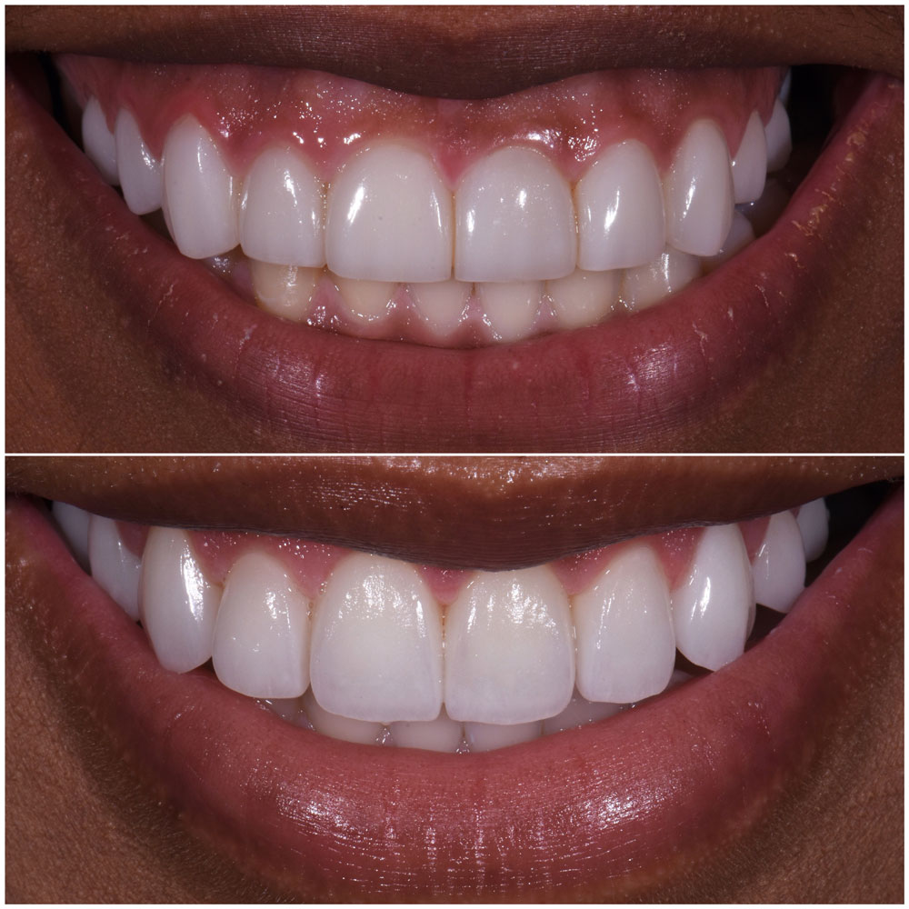 Before & After Smile Gallery, Los Angeles Cosmetic Dentist, Photo 31