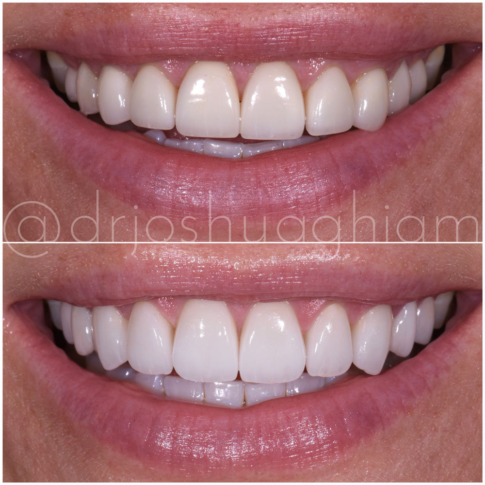 Before & After Smile Gallery, Los Angeles Cosmetic Dentist, Photo 34