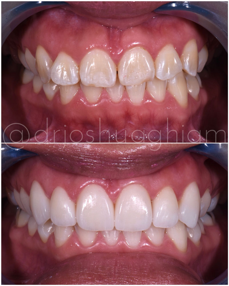 Before & After Smile Gallery, Los Angeles Cosmetic Dentist, Photo 36