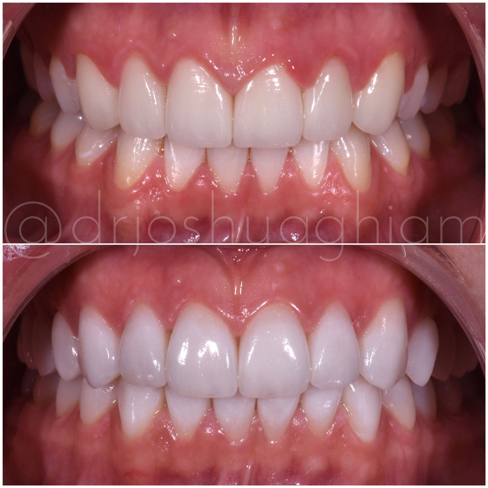 Before & After Smile Gallery, Los Angeles Cosmetic Dentist, Photo 39
