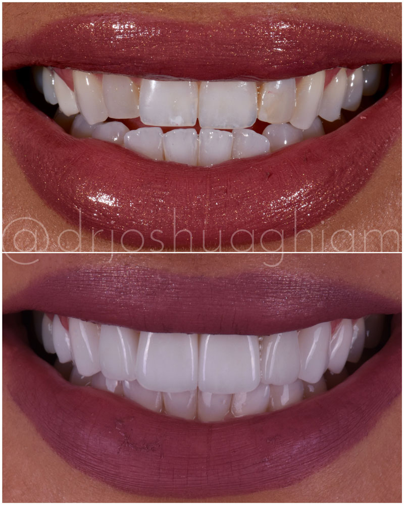 Before & After Smile Gallery, Los Angeles Cosmetic Dentist, Photo 43